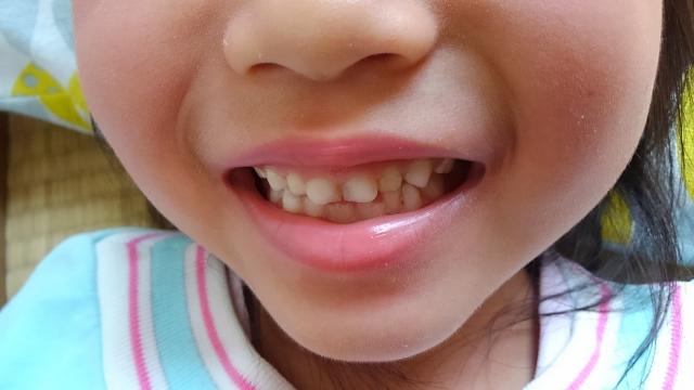 歯並び、出っ歯に影響するか
