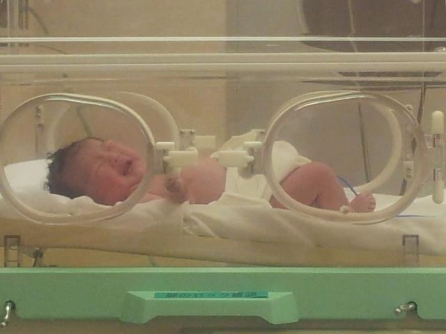 新生児黄疸の症状