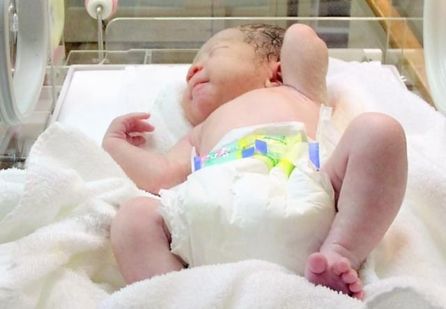 新生児黄疸の種類